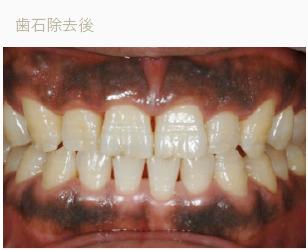 歯石除去後